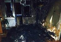 У Житомирі жінка отримала опіки під час пожежі