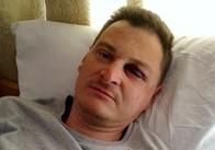 Поліція знайшла тих, хто побив журналіста Руслана Мороза